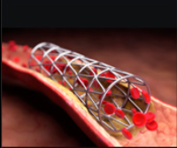 Coronary Stent Coating